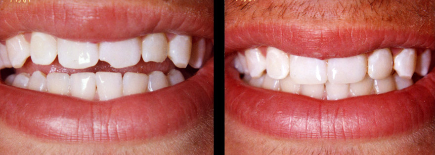 cosmetic dentistry glasgow, composite bonding
