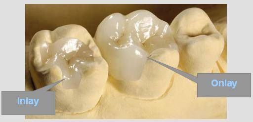cosmetic dentistry, inlays and onlays