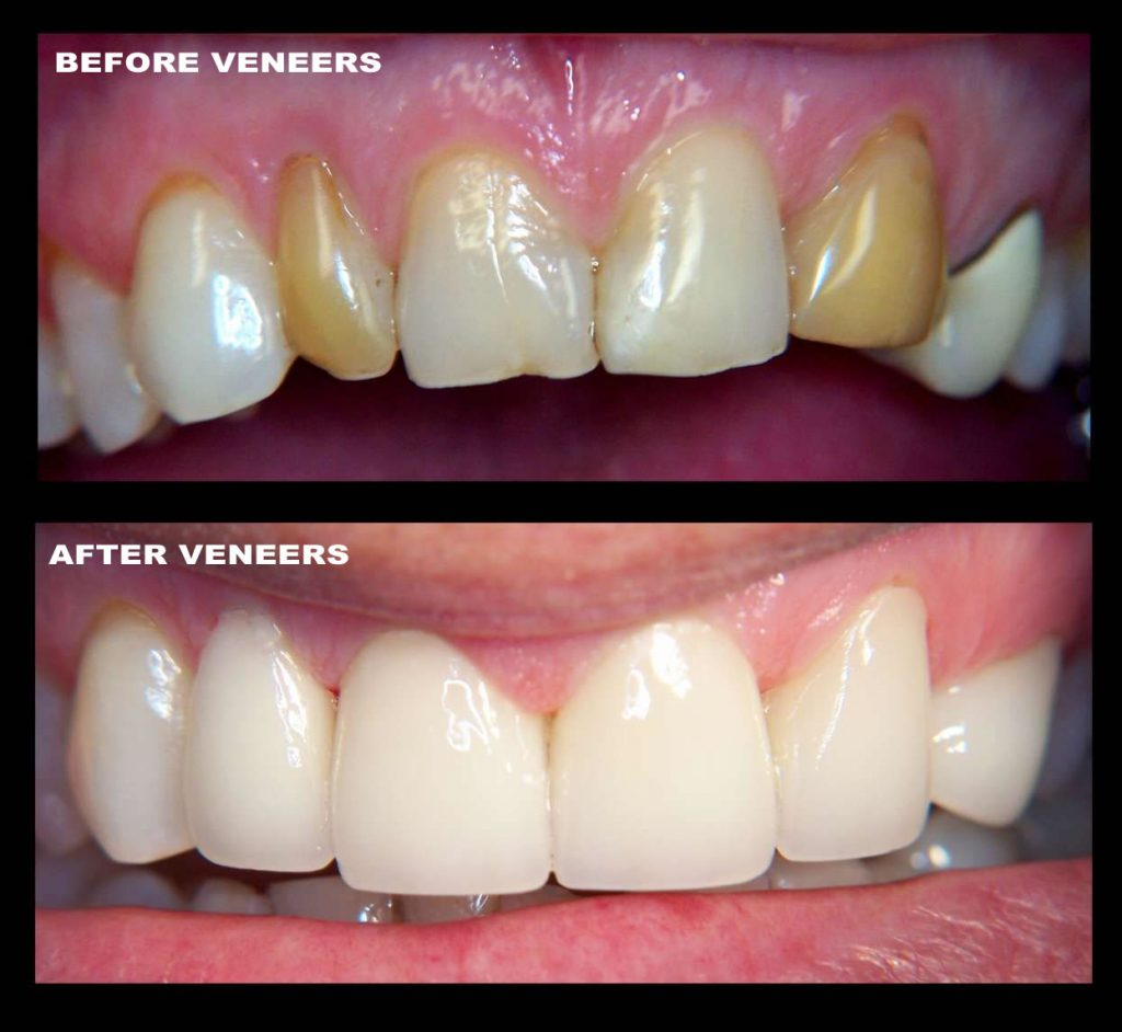 cosmetic dentistry, veneers